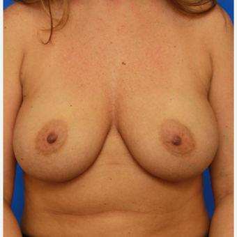 36- year old woman treated with Breast Implant Revision before 3168177