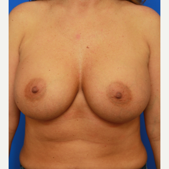 36- year old woman treated with Breast Implant Revision after 3168177