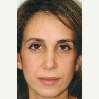 35-44 year old woman treated with Rhinoplasty after 3465408