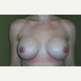 35-44 year old woman treated with Breast Augmentation after 3621224