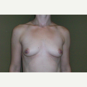 35-44 year old woman treated with Breast Augmentation before 3621224