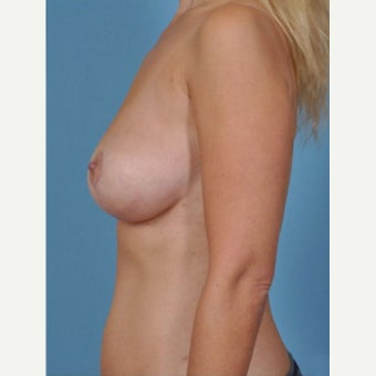 35-44 year old woman treated with Breast Fat Transfer after 2279579