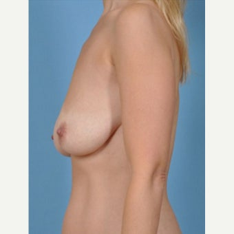 35-44 year old woman treated with Breast Fat Transfer before 2279579
