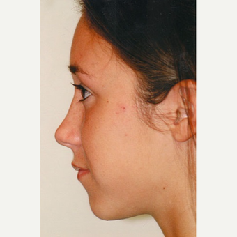 18-24 year old woman treated with Rhinoplasty after 3406209