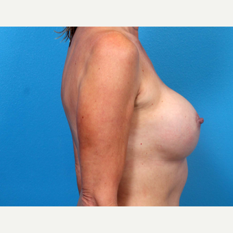 25-34 year old woman treated with Breast Implant Revision after 3371310
