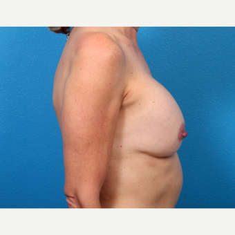 25-34 year old woman treated with Breast Implant Revision before 3371310