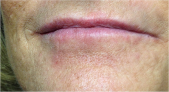 45-54 year old woman treated with Lip Augmentation after 3494045