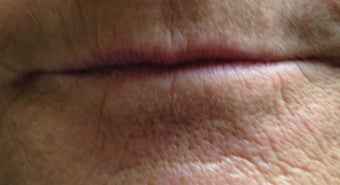 45-54 year old woman treated with Lip Augmentation before 3494045