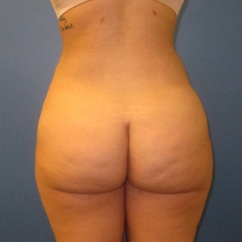 18-24 year old woman treated with Brazilian Butt Lift after 2509281