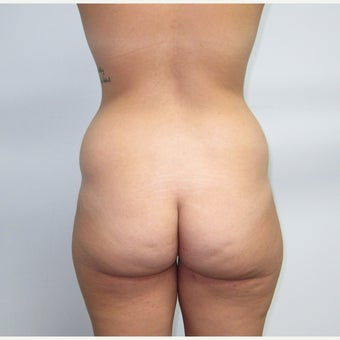 18-24 year old woman treated with Brazilian Butt Lift before 2509281