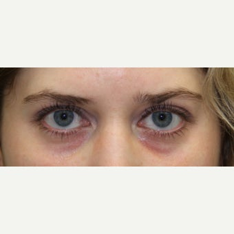 25-34 year old woman treated with Restylane for eye bags before 2533726
