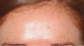25-34 year old woman treated with Photofacial after 2714159