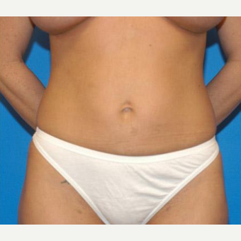 Tummy Tuck after 3208554