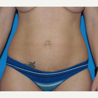 Tummy Tuck before 3208554