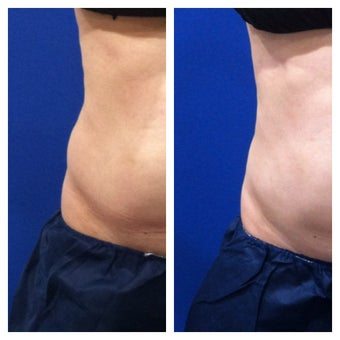 CoolSculpting for resistant fat to the flanks after 1 cycle treatment before 1346604