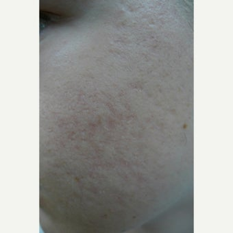 Fractional CO2 for scars before 2096006