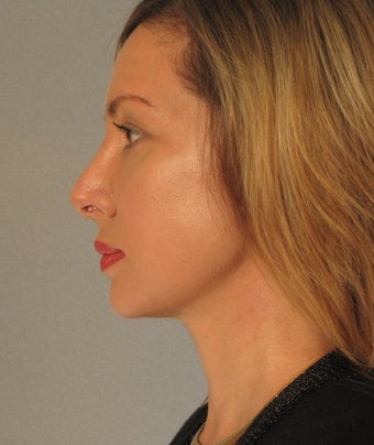 Necklift and Chin Augmentation after 1235514