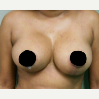 35-44 year old woman treated with Breast Reduction after 3458551
