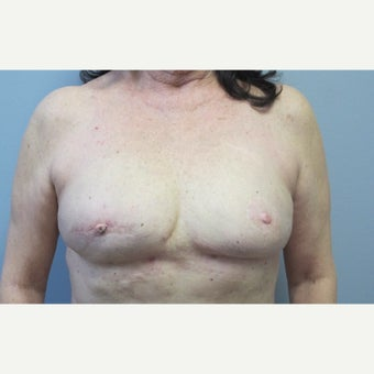 55-64 year old woman treated with  Fat Transfer for  breast reconstruction after 2672222