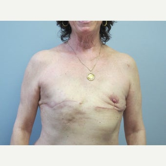 55-64 year old woman treated with  Fat Transfer for  breast reconstruction before 2672222