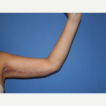 35-44 year old woman treated with Arm Lift after 2994128