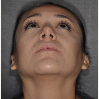 18-24 year old woman treated with Buccal Fat Removal 1 year post-op after 3708677
