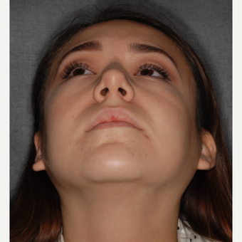 18-24 year old woman treated with Buccal Fat Removal 1 year post-op before 3708677