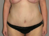 39 year old woman treated with Tummy Tuck after 3287353