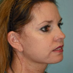 35-44 year old woman treated with Facelift after 3722279