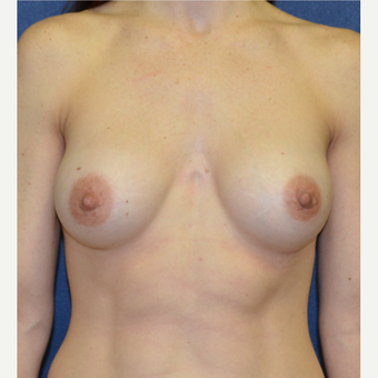 35-44 year old woman treated with Breast Augmentation after 3140103