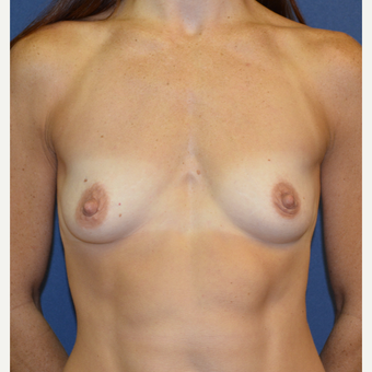 35-44 year old woman treated with Breast Augmentation before 3140103