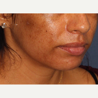 25-34 year old woman treated with Laser Treatment before 3230357