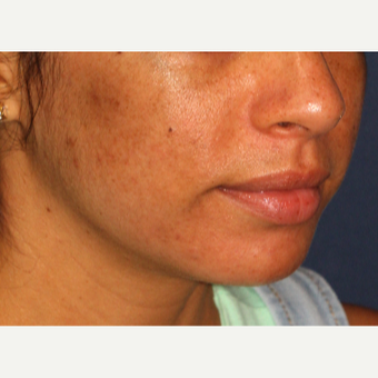 25-34 year old woman treated with Laser Treatment after 3230357