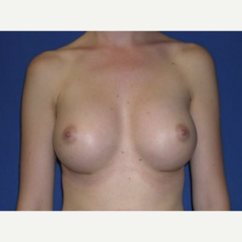 25-34 year old woman treated with Breast Augmentation after 3220125
