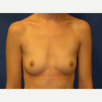 25-34 year old woman treated with Breast Augmentation before 3220125