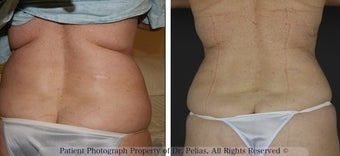 V-Shape skin tightening before 1250130