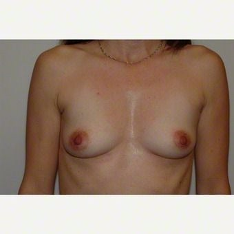 Breast Augmentation before 2259355