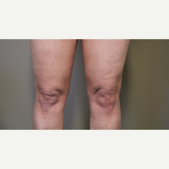45-54 year old woman treated with Smart Lipo Precision to the Knees after 3706274