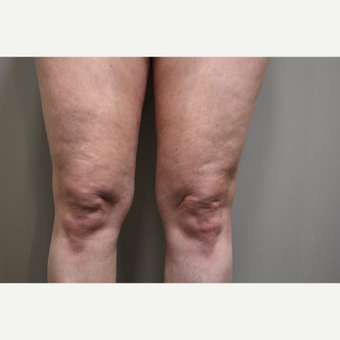 45-54 year old woman treated with Smart Lipo Precision to the Knees before 3706274