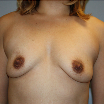 25-34 year old woman treated with Breast Augmentation before 3808864