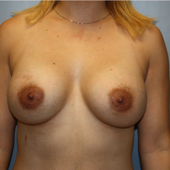 25-34 year old woman treated with Breast Augmentation after 3808864