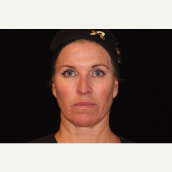 45-54 year old woman treated with Non Surgical Face Lift before 3502136