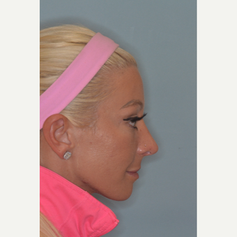 25-34 year old woman treated with Revision Rhinoplasty after 3838541
