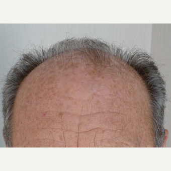 55-64 year old man treated with Hair Transplant before 3371863