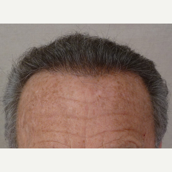 55-64 year old man treated with Hair Transplant after 3371863