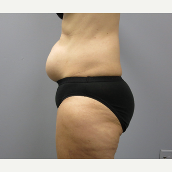 45-54 year old woman treated with Tummy Tuck before 3325394