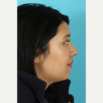 25-34 year old woman treated with Rhinoplasty after 3691303