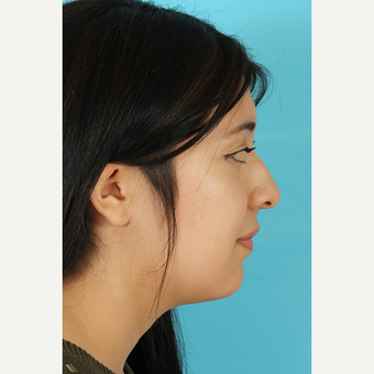 25-34 year old woman treated with Rhinoplasty before 3691303