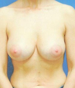 Breast Implants after 864530