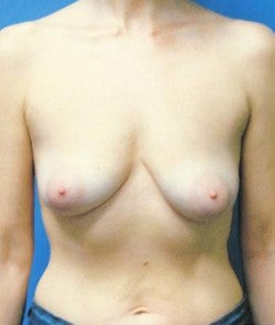 Breast Implants before 864530